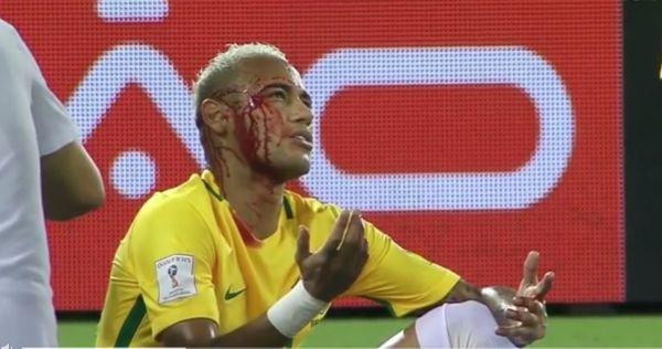 Eliminacje MŚ: Brazylia znów gra pięknie, Neymar zszedł z rozciętym łukiem brwiowym [VIDEO]