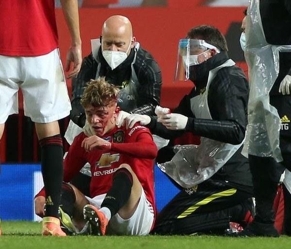 Zakrwawiona twarz Brandona Williamsa po walce o piłkę w meczu z Southampton