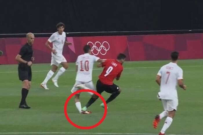 Dani Ceballos pokazał efekt brutalnego faulu. Jego kostka jest w opłakanym stanie [ZDJĘCIE]